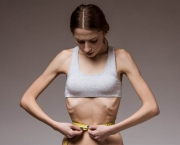 Anorexia (2)