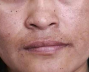 as-causas-do-melasma-6